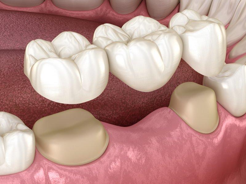 a digital image of a dental bridge in Carrollton